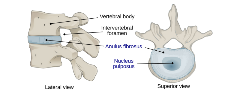 Bulging Discs and What To Do About Them