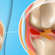 What Causes a Torn Meniscus